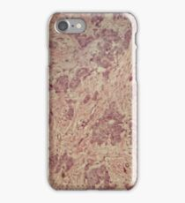 Breast cancer under the microscope iPhone Case/Skin