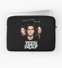 TEEN WOLF Laptop Sleeve