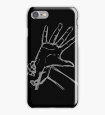 Kawhi Claw iPhone Case/Skin