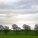 Capesthorne Trees by Andrew Dunwoody