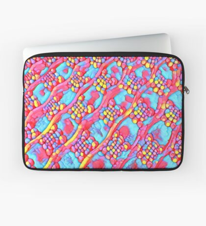 The Candy Shop Laptop Sleeve