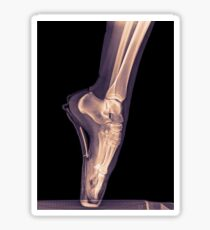 x-ray of a ballet dancer standing on pointe  Sticker