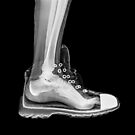 X-Ray of a foot and ankle in a running shoe by PhotoStock-Isra