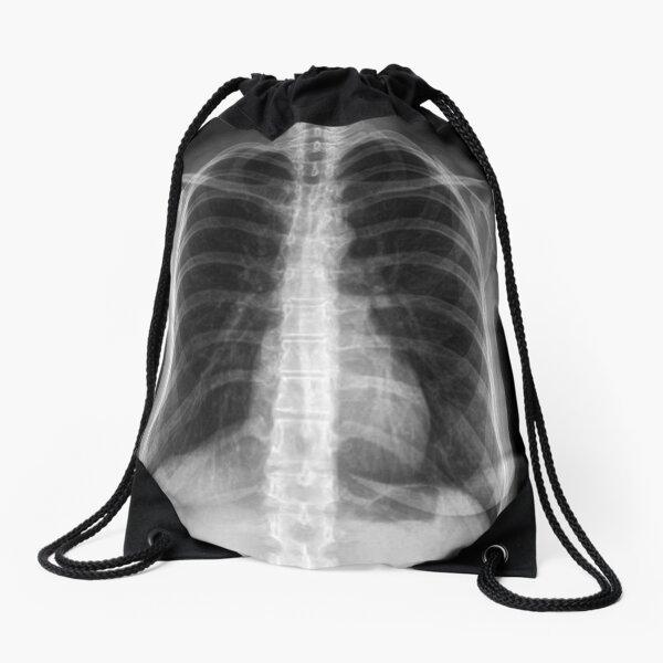 X Ray Drawstring Bag