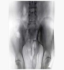 Headless Barbie Doll X-ray 2 Poster