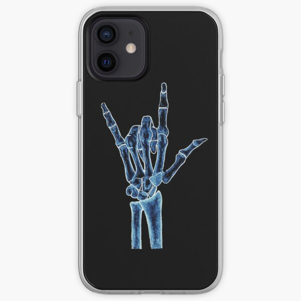 X-ray iPhone Soft Case