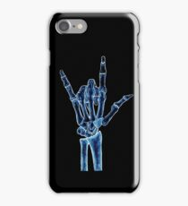 X-ray iPhone Case/Skin