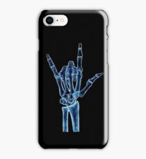 X-ray iPhone Case/Skin