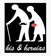 His and Hers Hernia Photographic Print