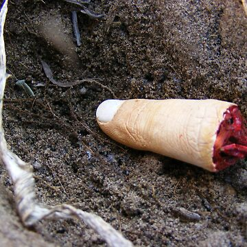 Severed Index Finger by peyote