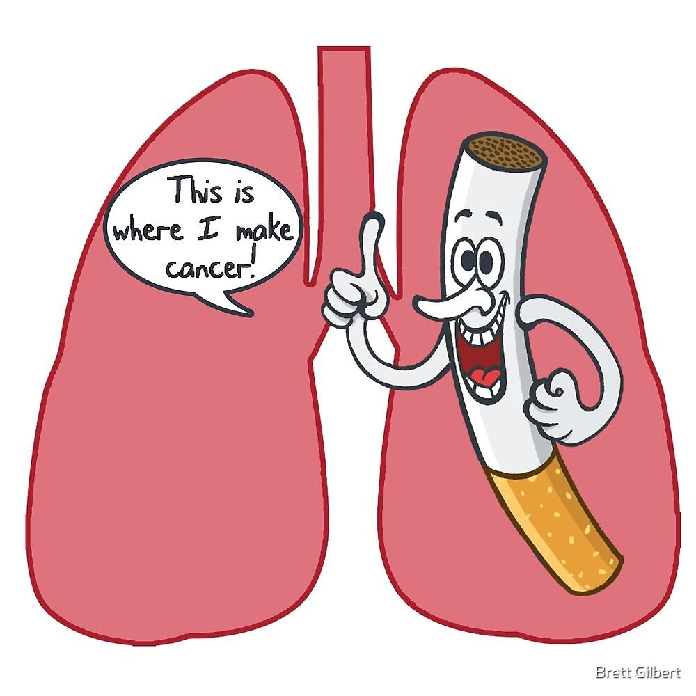 Cigarette Lung Cancer by Brett Gilbert