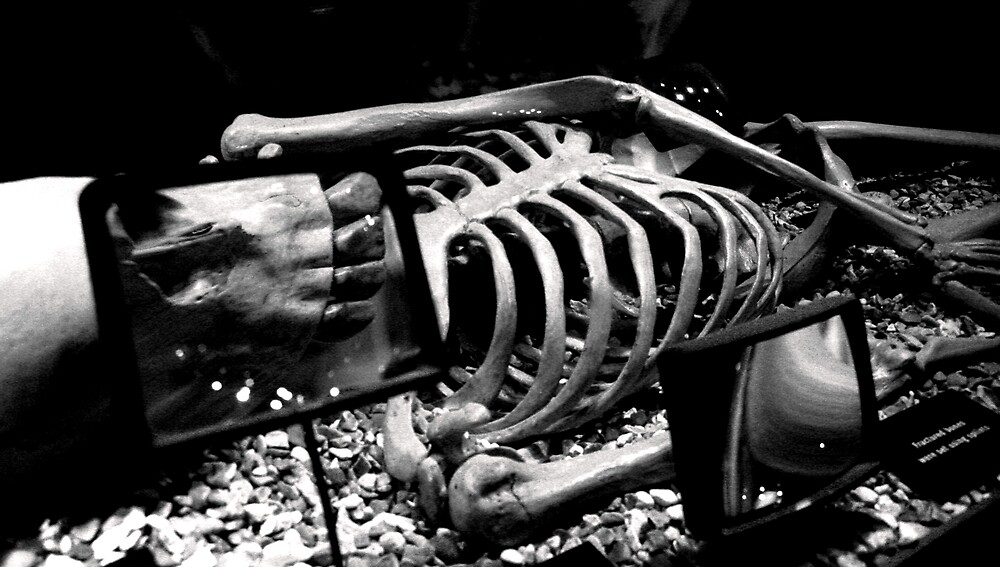 bones from a bygone era by BenGartrell