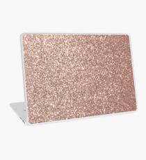 Pink Rose Gold Metallic Glitter Laptop Skin