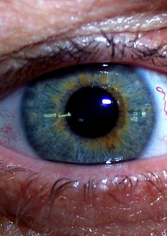 Eye by andreatreitman