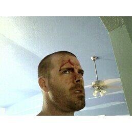 I fought the tree, and the tree won by Brian Willocks