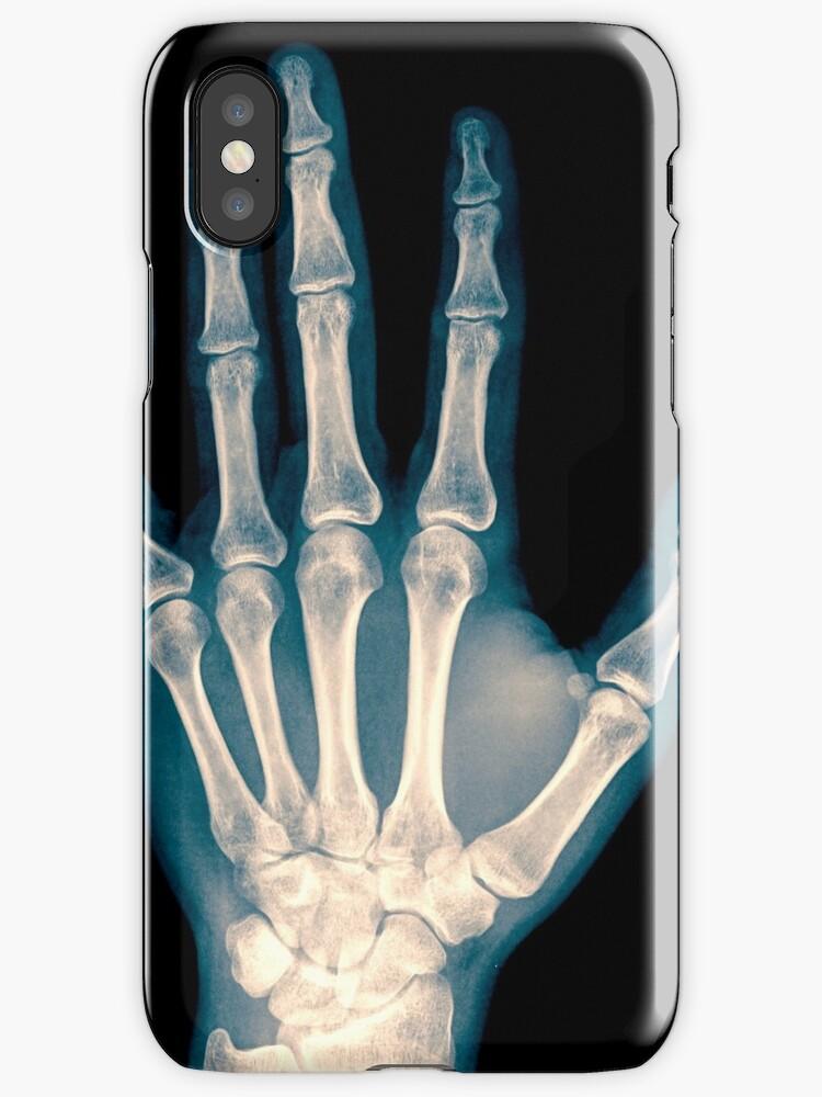Vinilos y fundas para iPhone «radiografía de muñeca, mano y dedos ...