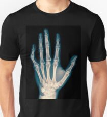 x-ray of wrist, hand and fingers Unisex T-Shirt