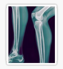 x-ray of the right knee of a 42 year old male  Sticker