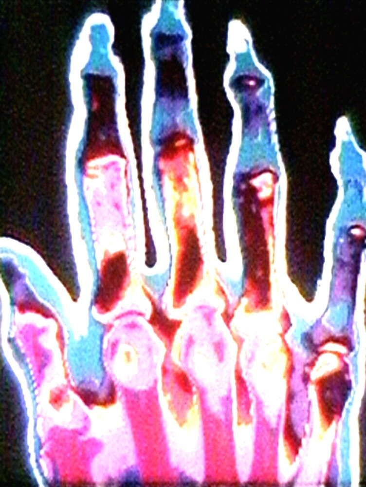 Glowing Skeleton Hand by ddogsis