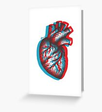 3D AORTA Greeting Card