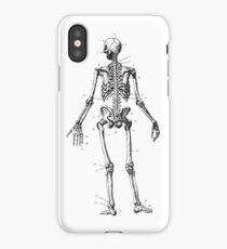 Human Anatomy Drawing: Female Skeleton iPhone Case/Skin