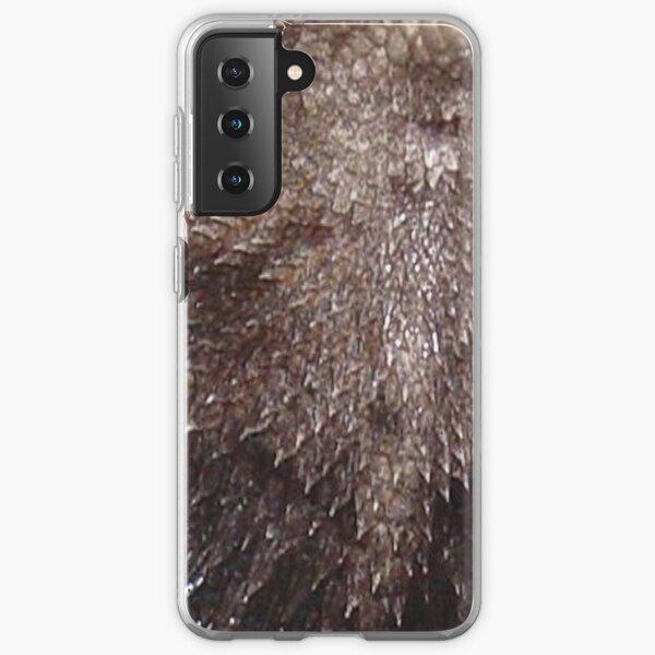 Dragonskin! Samsung Galaxy Soft Case