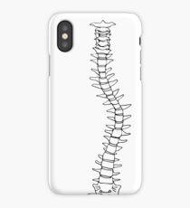 Scoliosis iPhone Case/Skin