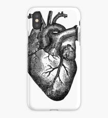 PHD Heart Throb iPhone Case