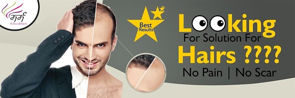 Hair Transplant In Indore by riyasharma1