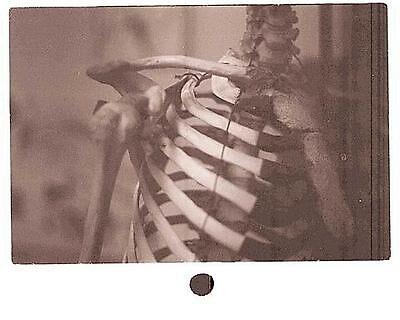 Bones by ainhcara