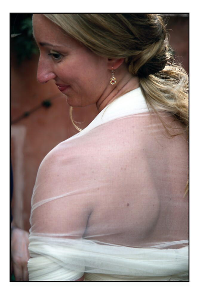 Dress detail by Philip  Rogan