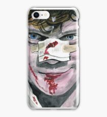 Alex DeLarge iPhone Case/Skin