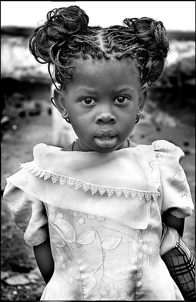 'Burberry Girl' HEAL Africa Hospital, Eastern Democratic Republic of Congo by Melinda Kerr