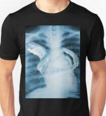 Chestburster X-Ray Unisex T-Shirt