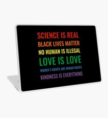 Science is real! Black lives matter! No human is illegal! Love is love! Women's rights are human rights! Kindness is everything! Shirt Laptop Skin