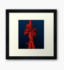 The short-tempered rope Framed Print