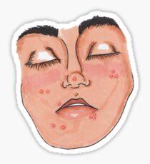 Pimple Face  Sticker