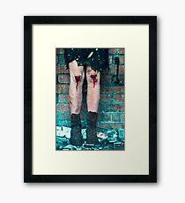 Female knees covered in blood Framed Print