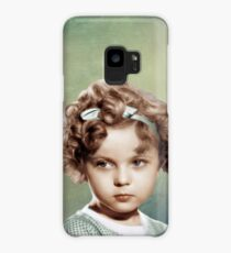 Sweet Shirley Temple Case/Skin for Samsung Galaxy