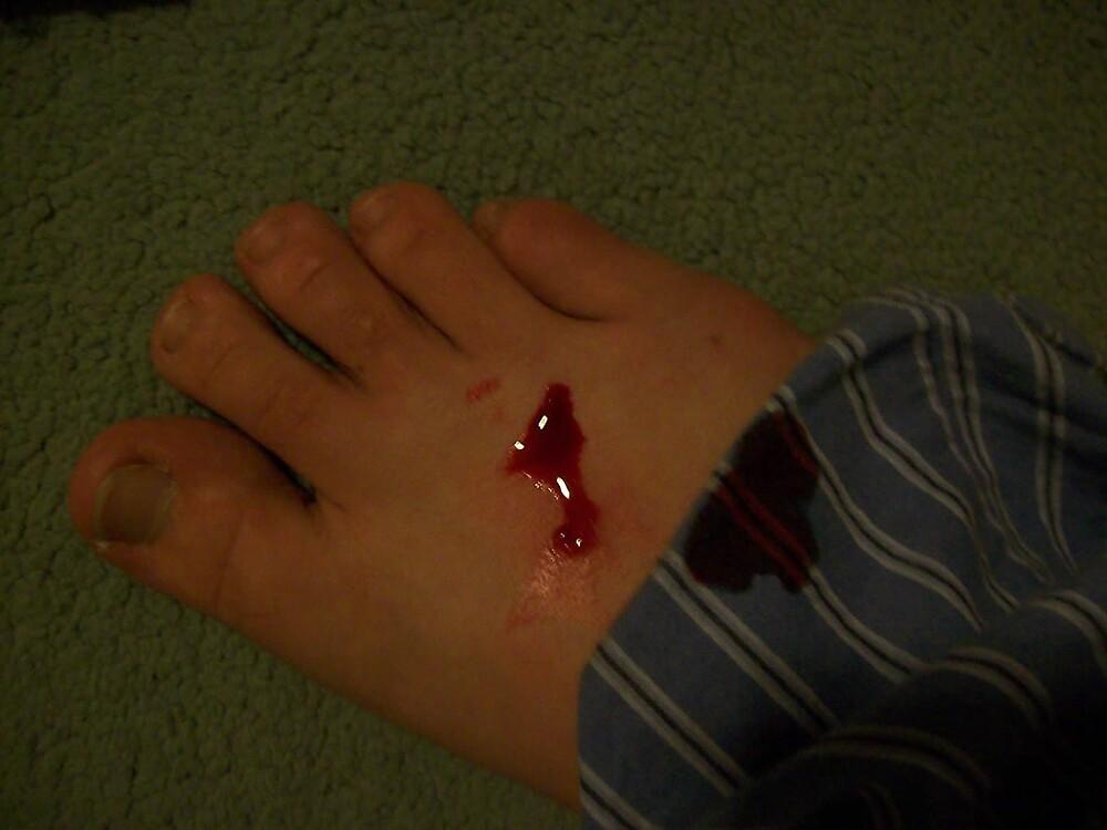 bleeding foot by lennylennylenny