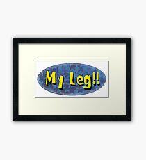My Leg! Framed Print