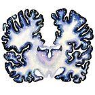 Galaxy Nissl Stain Brain by christinel
