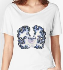 Galaxy Nissl Stain Brain Women's Relaxed Fit T-Shirt