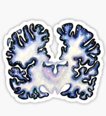 Galaxy Nissl Stain Brain Sticker