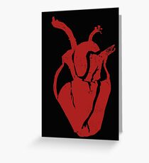 Open Heart Greeting Card