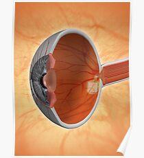 Retinal Implant Poster