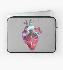 Superstar Heart (on grey) Laptop Sleeve