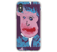 Coque/skin iPhone