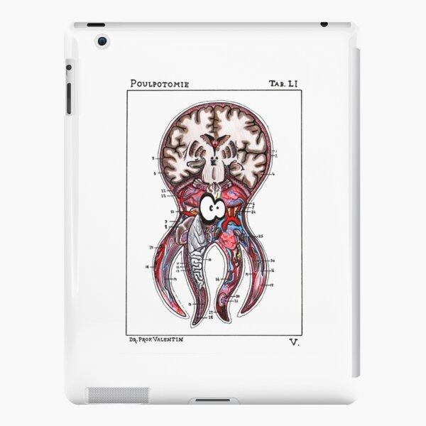 Poulpotomie Coque rigide iPad