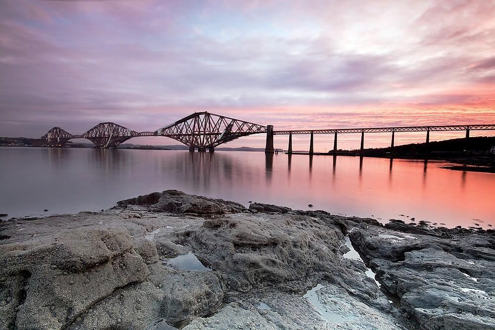 The Forth Railway Bridge by SolasGallery